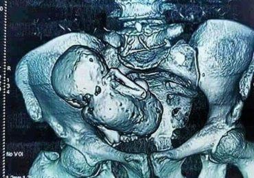 Tomografía 3 D de una anciana de 70 años que lleva a su hijo calcificado hace más de 30 años en el vientre